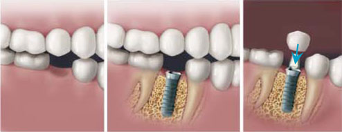 implant-supported-dental-bridges-2